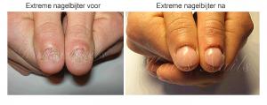 extreme nagelbijter voor en na
