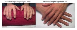 Minder extreme nagelbijter voor en na