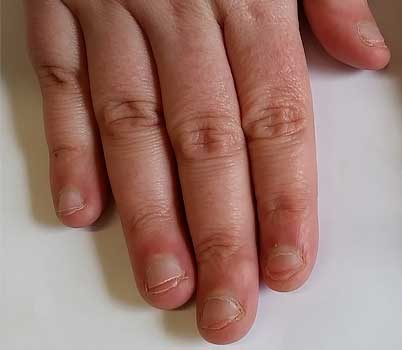 Nagelbijters kom van je verslaving af! Nagelbijtarrangementen om van het nagelbijten af te komen